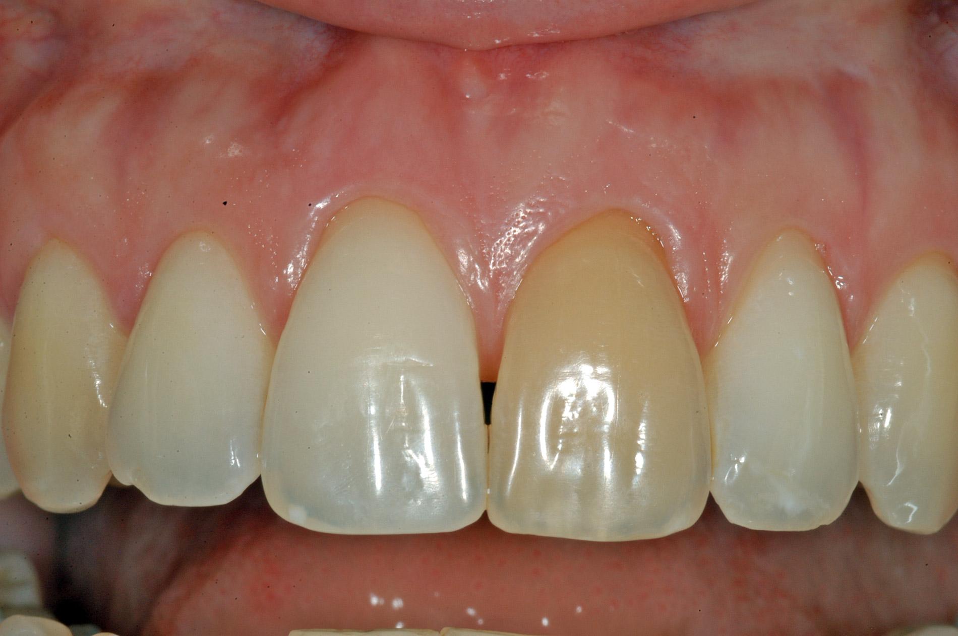 studio-odontoiatrico-viterbo-crea-dente-discromico