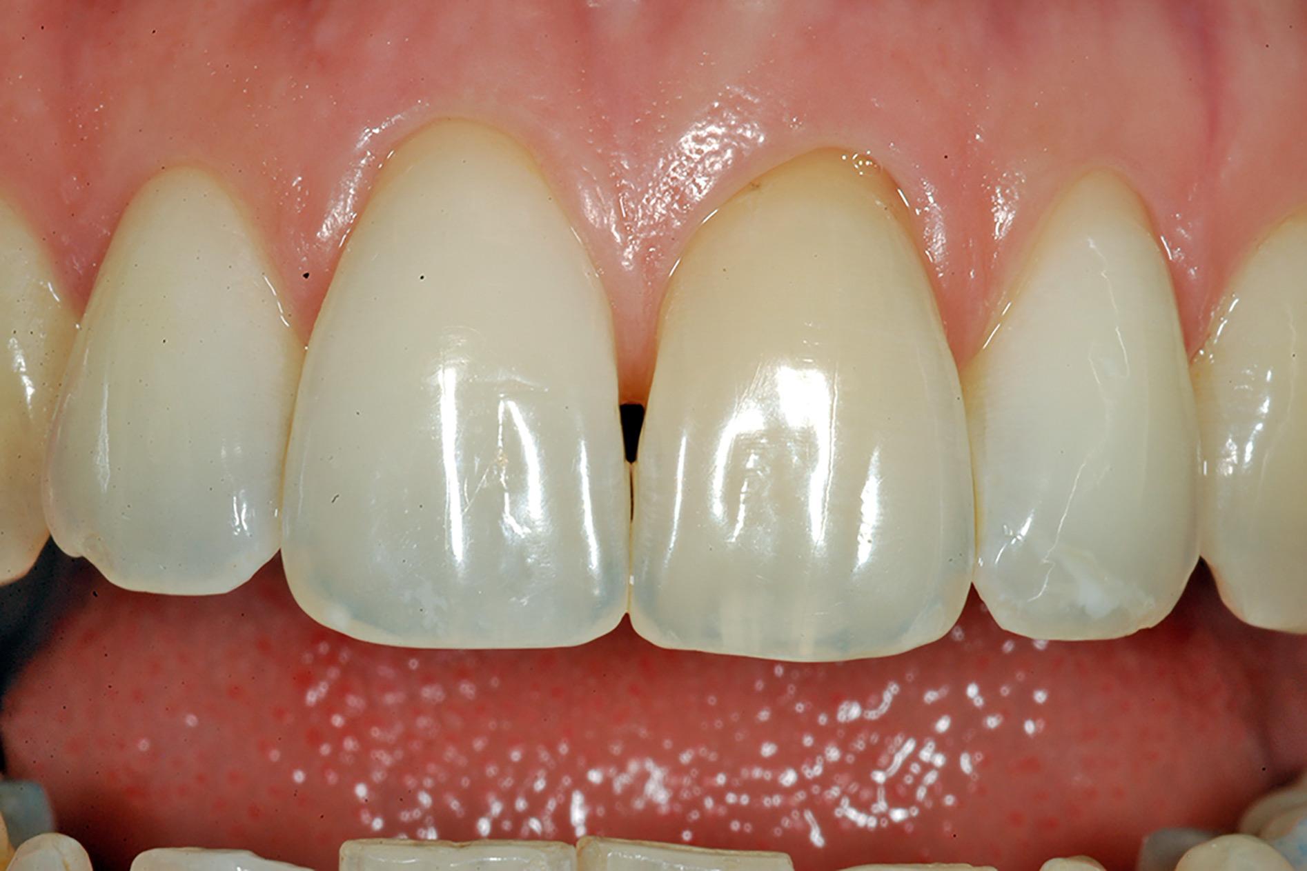 studio-odontoiatrico-crea-viterbo-dente-dopo-una-seduta-di-sbiancamento-professionale