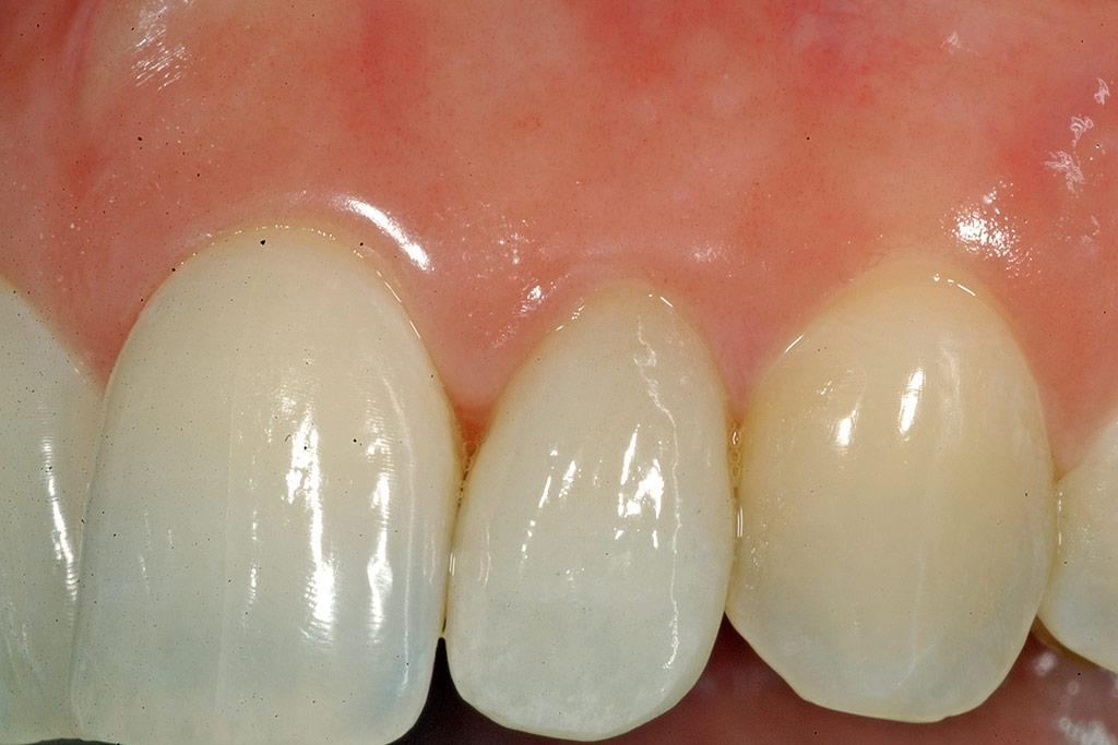 studio-odontoiatrico-crea-viterbo-nuova-corona-applicata-dopo-rinnovo-cover
