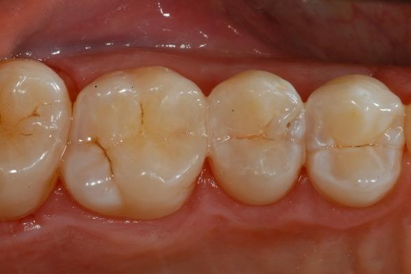 Studio-odontoiatrico-A-Crea-Viterbo-conservativa-post-trattamento