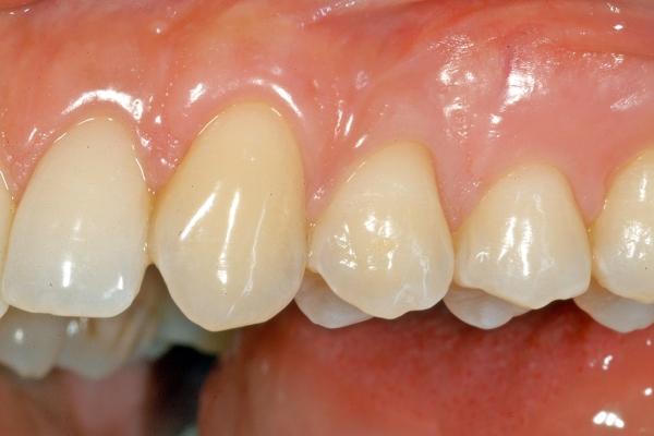 studio-odontoiatrico-crea-viterbo-dopo-i-denti-dopo-un-trattamento-di-chirurgia-plastica-gengivale