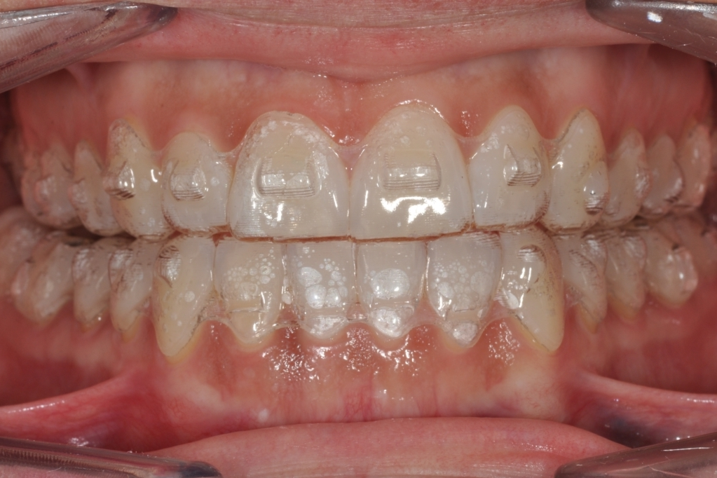 Ortodontia-Invisibile-Studio-A-Crea-Viterbo